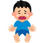 手足口病の痛みはいつまで?緩和して痒みを和らげる方法は?