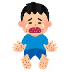 ヘルパンギーナの発疹の体の部位ごとの対処法と注意点!全身も