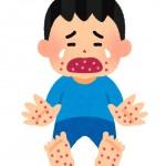 手足口病で熱なしのときは要注意!熱が出ないときの判断の仕方!
