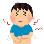 日焼けによる湿疹とかゆみの治療法と注意点!子供への対処法も!