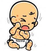赤ちゃんで水いぼが顔などにできる原因と治療法!薬についても!