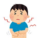 虫刺されと蕁麻疹の違いや見分け方!対処法や注意点も!
